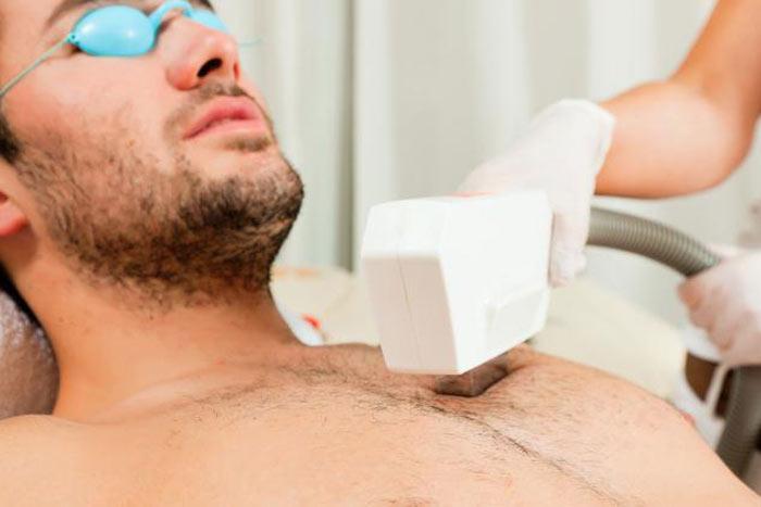 نتیجه تصویری برای لیزر درمانی برای از بین بردن مو های زائد سینه مردان